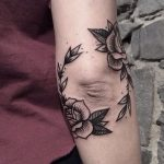 Black roses around the elbow
